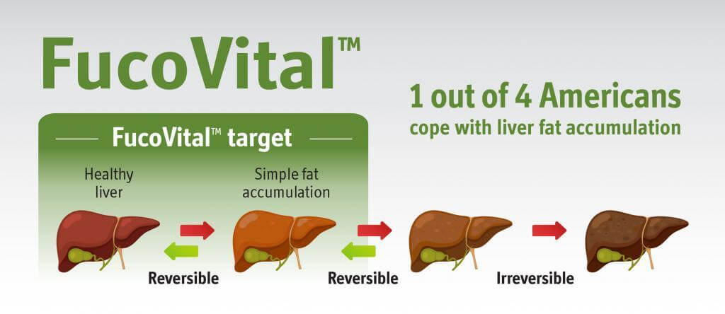 1 out of 4 American cope with liver far accumulation