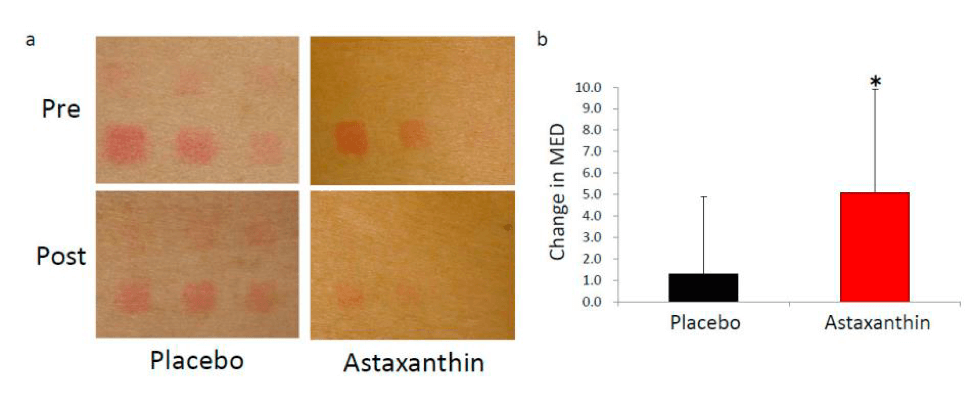 astaxanthin effectively suppresses cell damage caused by free radicals and induction