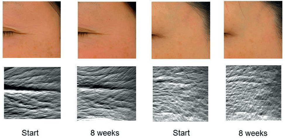 astaxanthin has shown to help reduce the appearance of fine lines and wrinkles