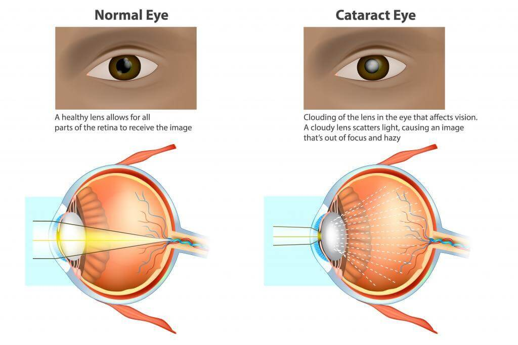 Cataracts is a clouding of the lens. Medical illustration of a normal eye and an eye with a cataract, clouded lens